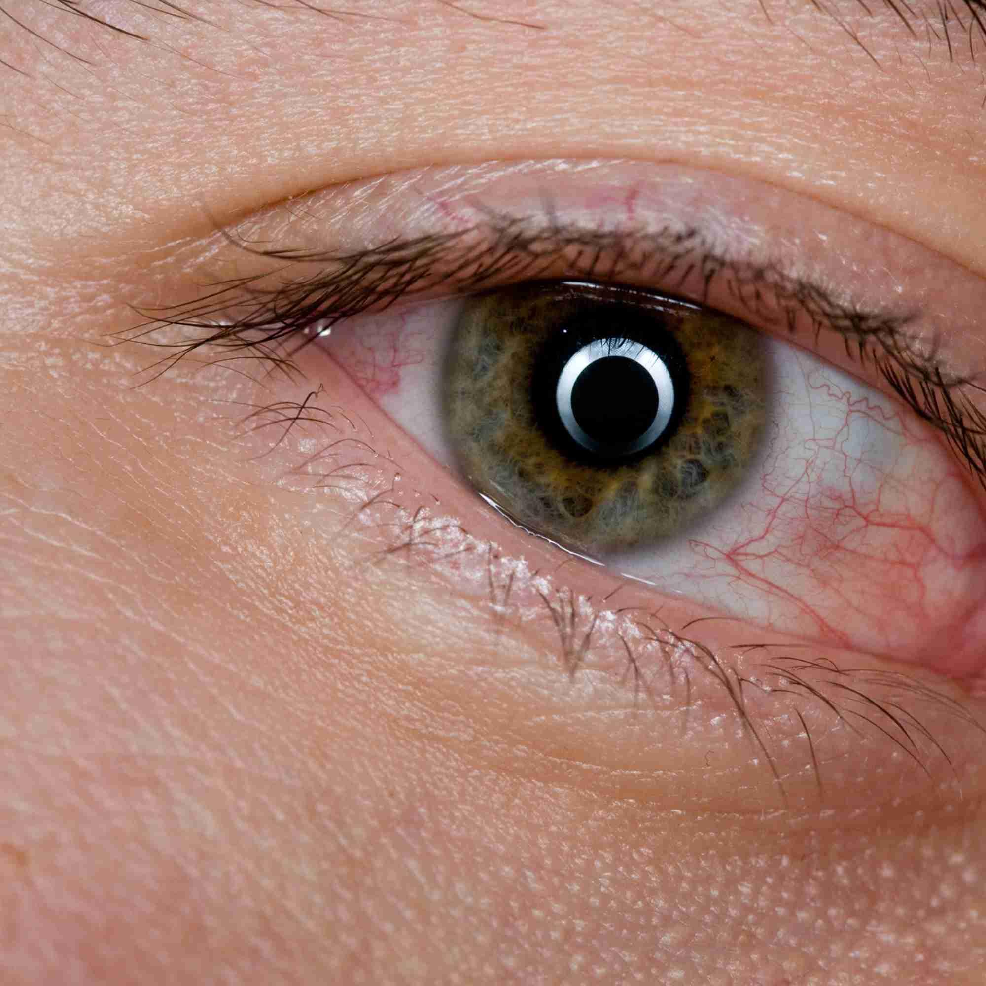 Silmän Elohiiri
